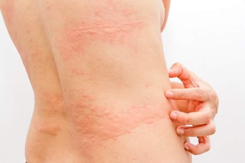 Alergia é um dos sintomas físicos do estresse